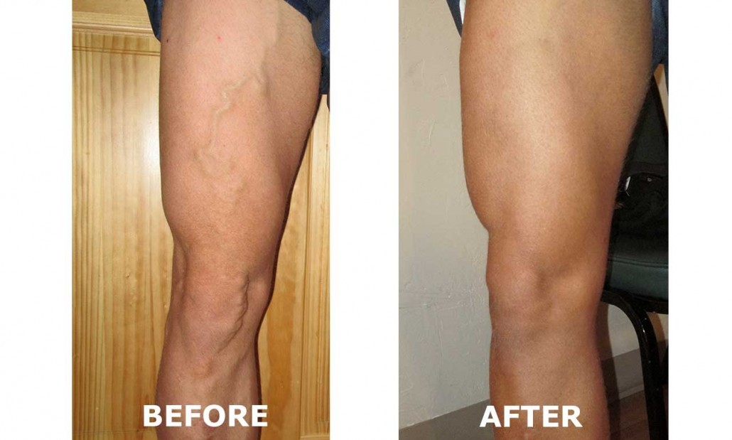 Vein Clinic in Grand Junction Colorado