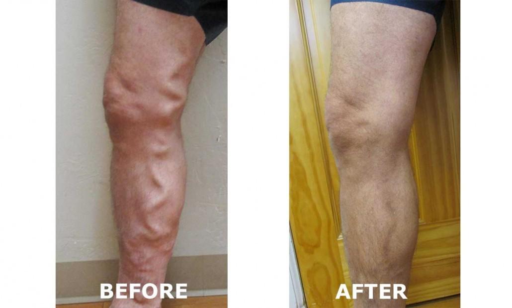 Repair veins in legs