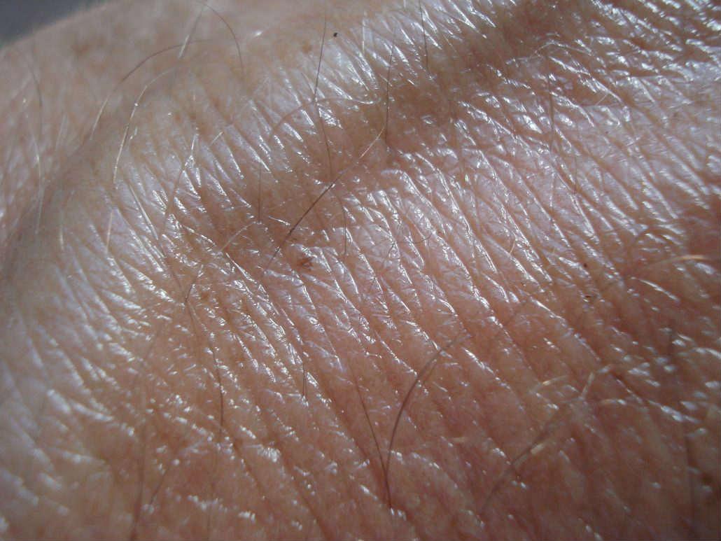 varicose vein service near me
