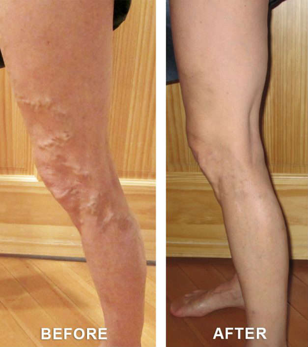 before and after varicose vein treatment in grand junction