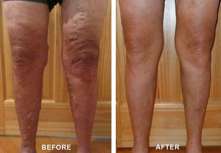 before and after vein treatment in grand junction