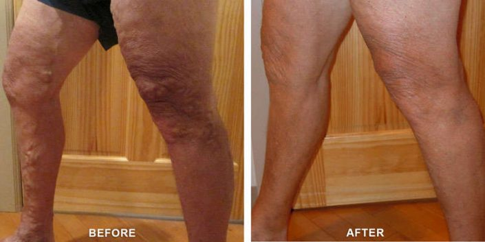 varicose veins in orchard mesa