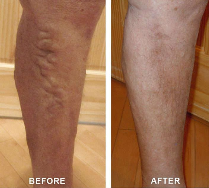 varicose veins colorado