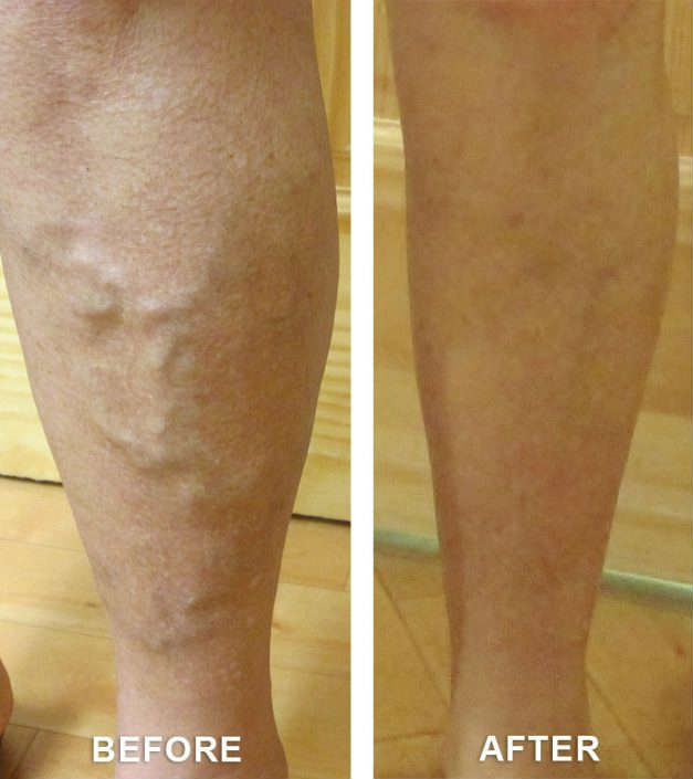 varicose veins in grand junction co