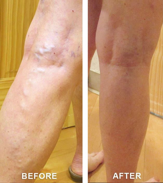 varicose veins in gj colorado
