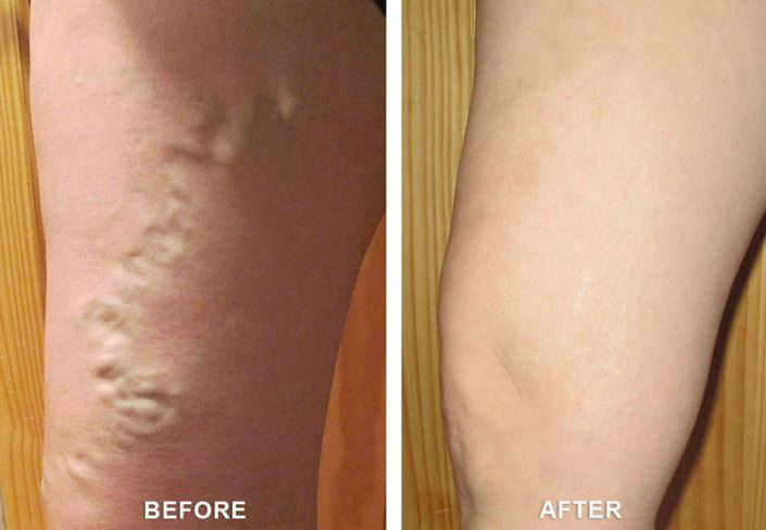 before and after vein treatment in grand junction co