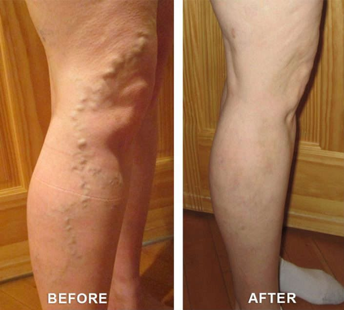 varicose veins in clifton colorado