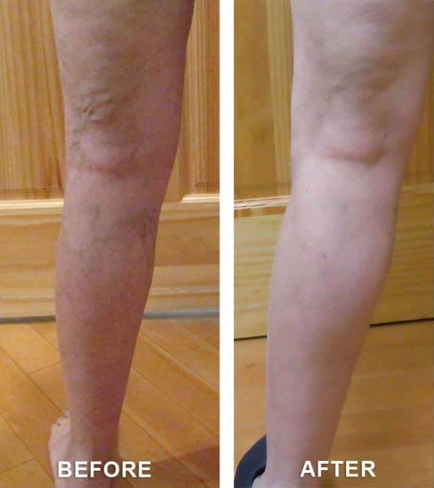 varicose veins solution co