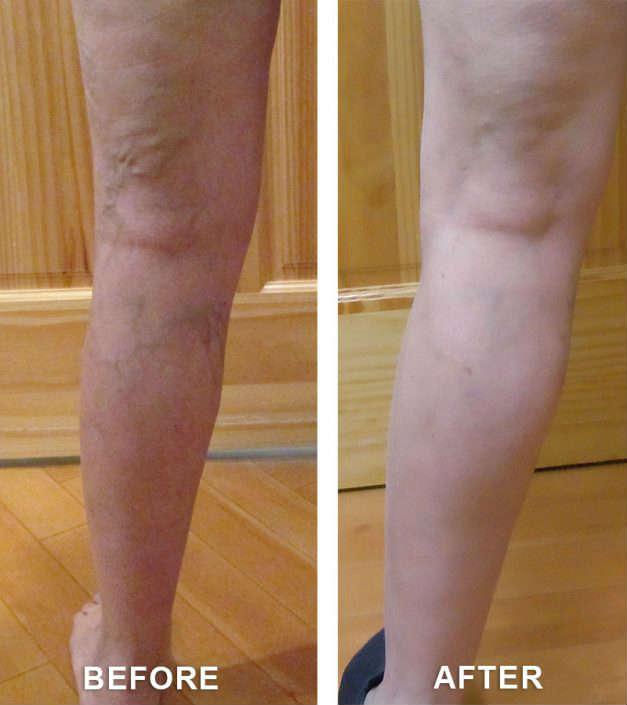 varicose veins solution co