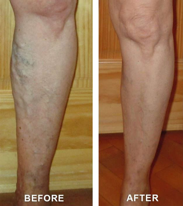 varicose veins results