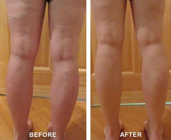 varicose veins remedy