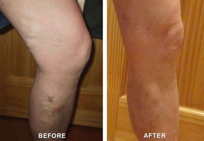 varicose veins in glenwood springs