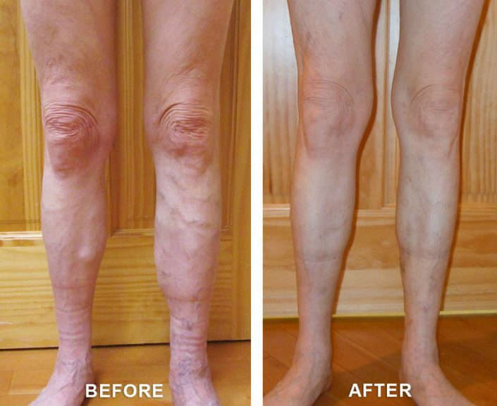 varicose veins remedy in grand junction colorado