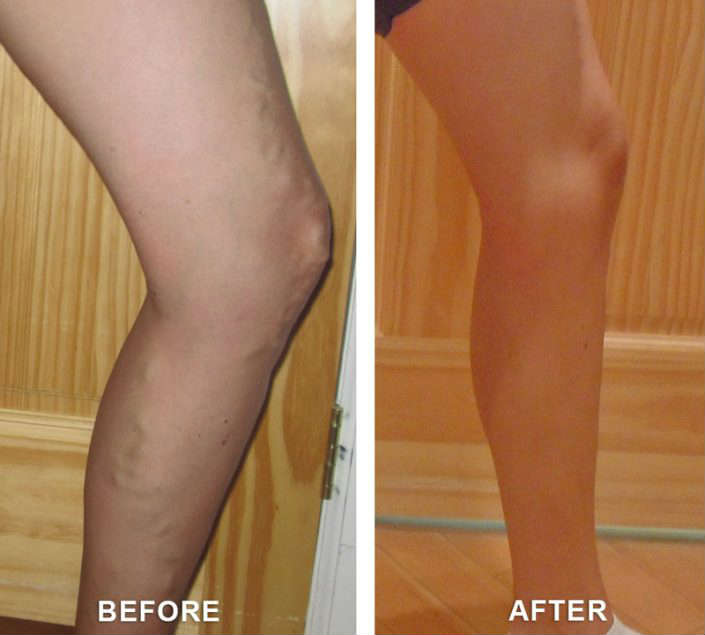varicose veins therapy in grand junction colorado