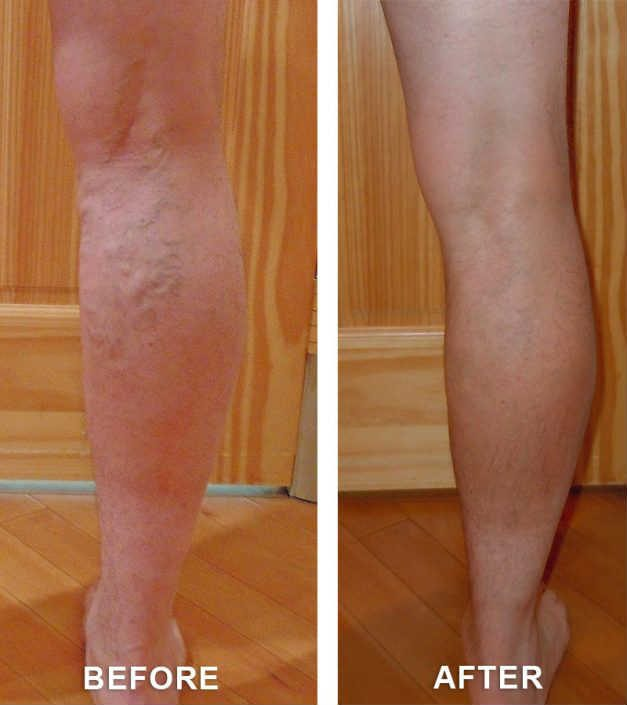 varicose veins services in grand junction