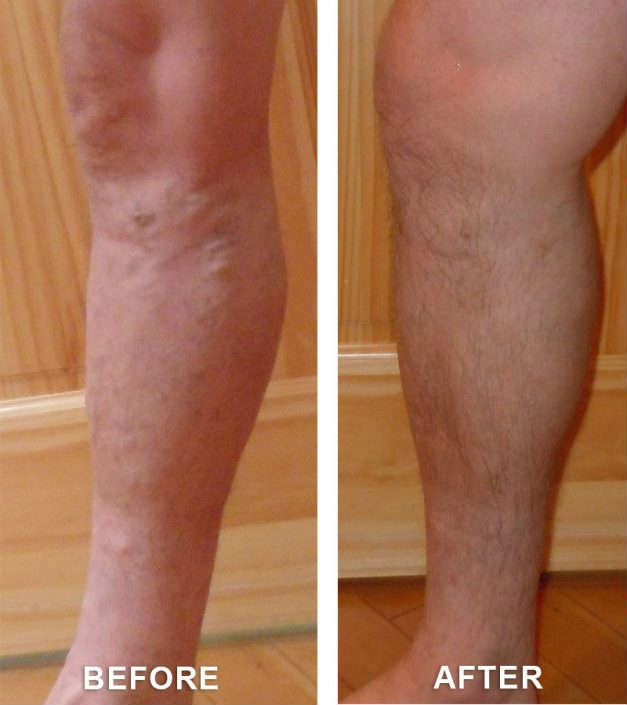 clifton varicose veins