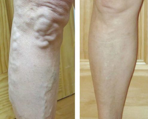 venous insufficiency treatment before and after