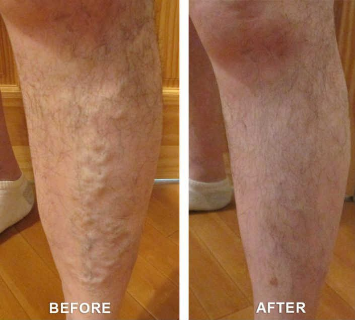 varicose veins services in utah