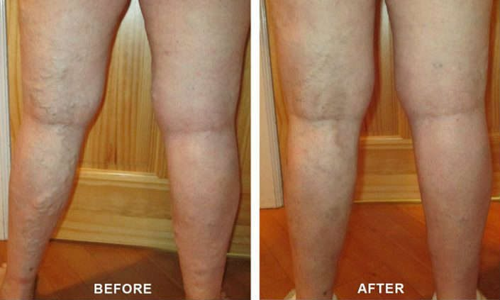 varicose vein services in colorado