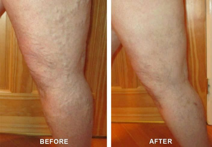 varicose veins cures