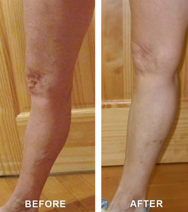 varicose veins on a guy in grand junction