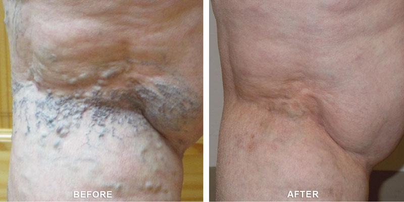 varicose veins healing services