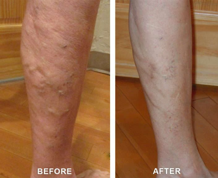 healing varicose veins in grand junction