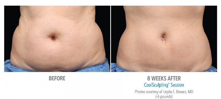 women belly before and after cool sculpting