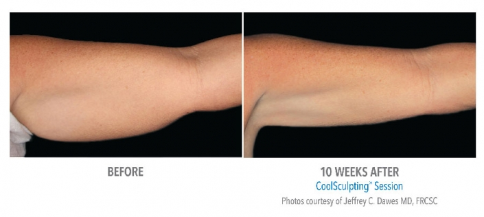womens arms before and after cool sculptin