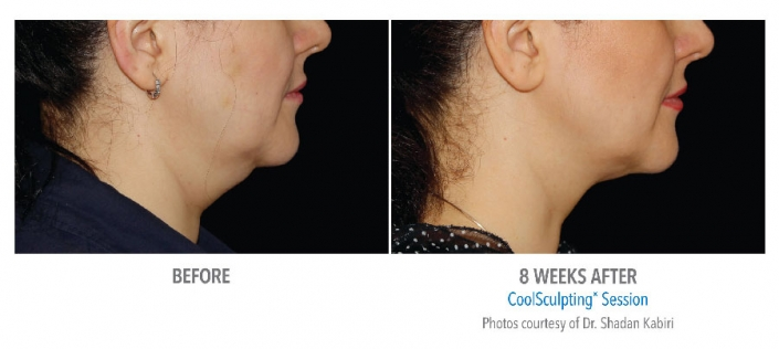 face sculpting before and after