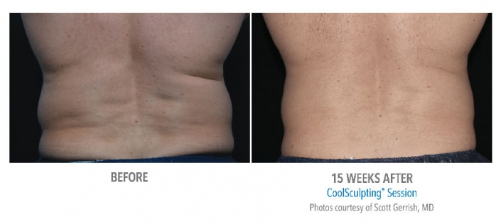 male waist before and after cool sculpting